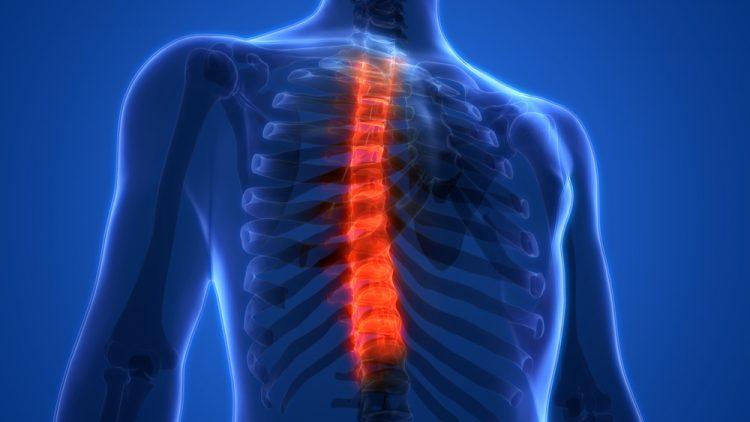Хондроз грудного отдела позвоночника доставляет массу неудобств человеку