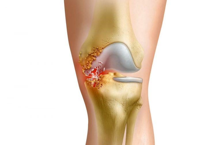 Инфекционный артрит чаще всего поражает коленный сустав и бедро