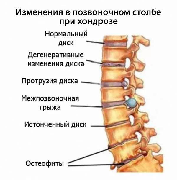 Как выглядит позвоночник при остеохондрозе