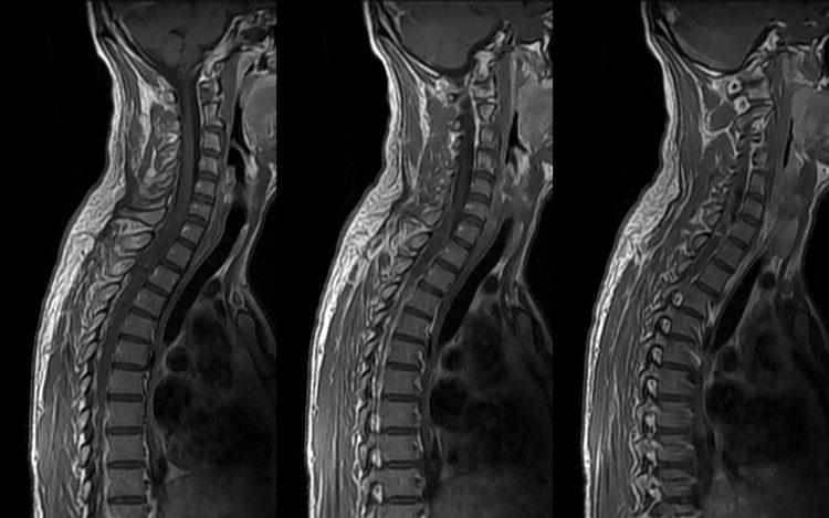 МРТ - один из методов диагностики позвоночника