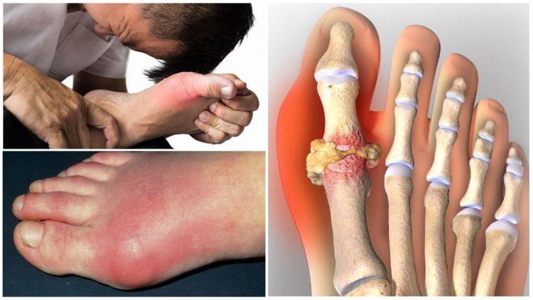 Подагрический артрит поражает в первую очередь большой палец ноги