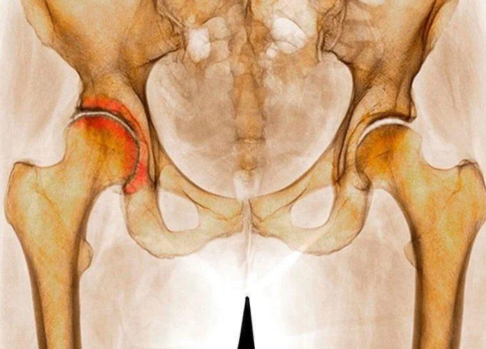 Деформирующий остеопороз 1 степени тазобедренного сустава