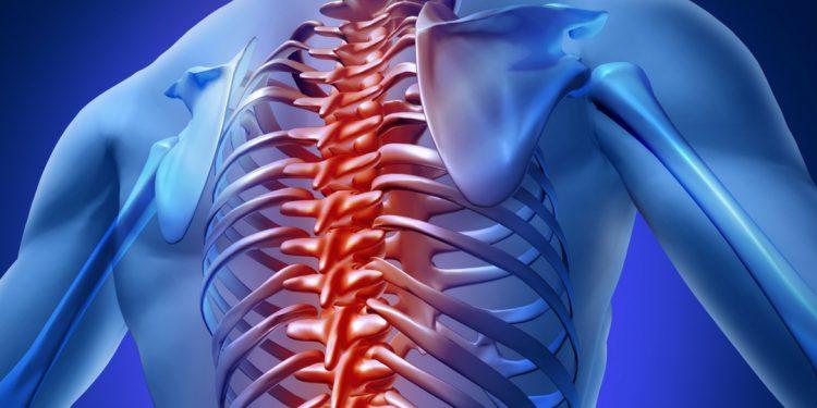 При остеохондрозе грудного отдела в качестве терапии назначают лечебную гимнастику
