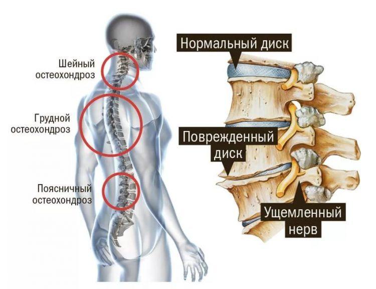 Повреждение дисков при остеохондрозе грудного отдела позвоночника