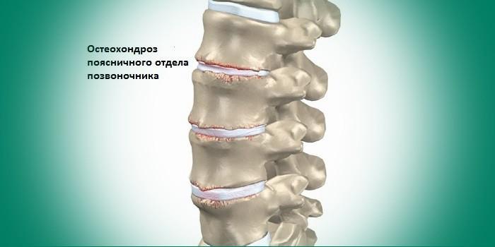 Сущность патологии остеохондроз