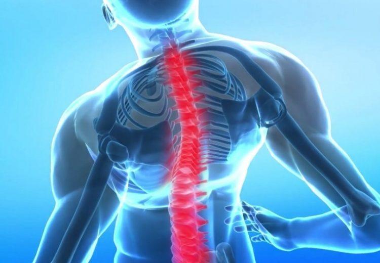 Для лечения остеохондроза позвоночника применяют медикаментозные средства