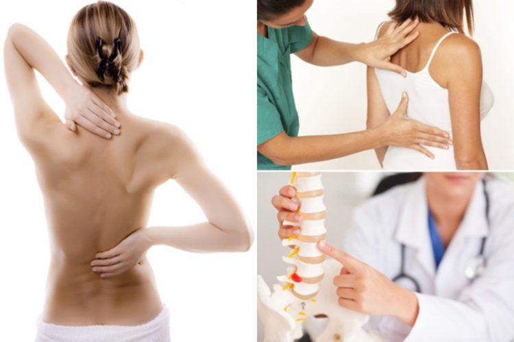 Остеохондроз спины классифицируют в зависимости от зоны поражения