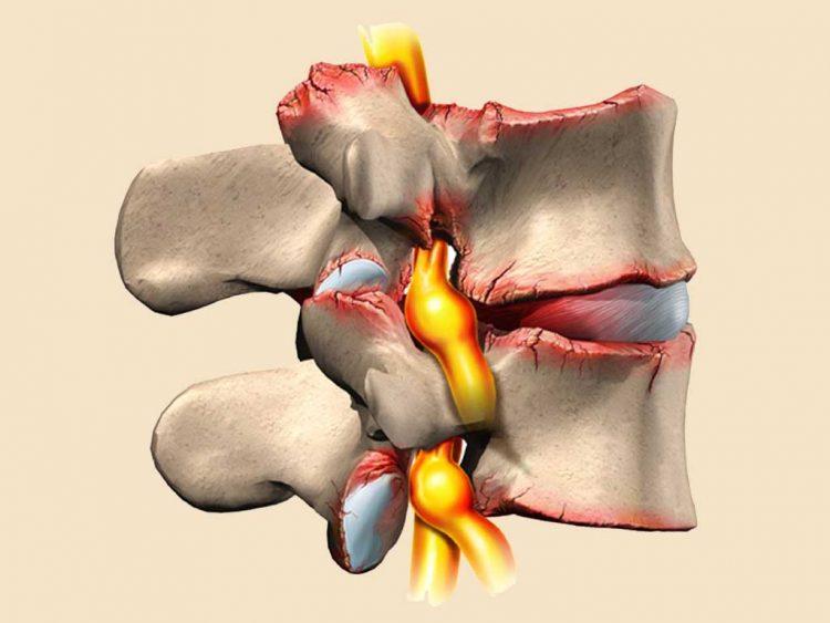 Нарушения в хрящах суставов при остеохондрозе