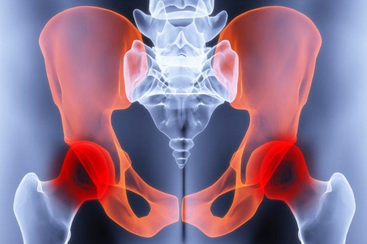 Остеохондроз тазобедренного сустава - заболевание, которое требует своевременного лечения