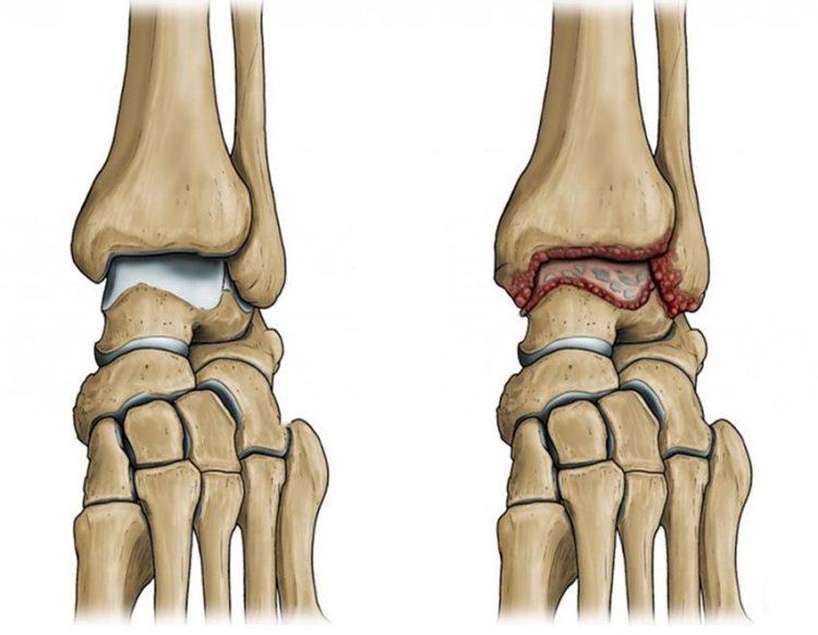 Воспаление в суставах при артрите