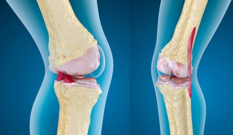 Остеоартроз- заболевание, которое встречается довольно часто