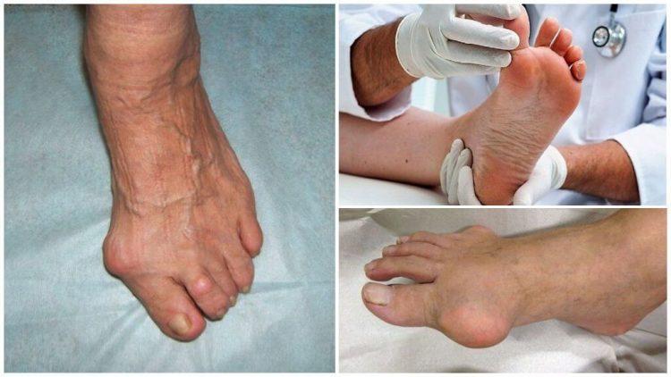 Проявление симптомов подагрического артрита