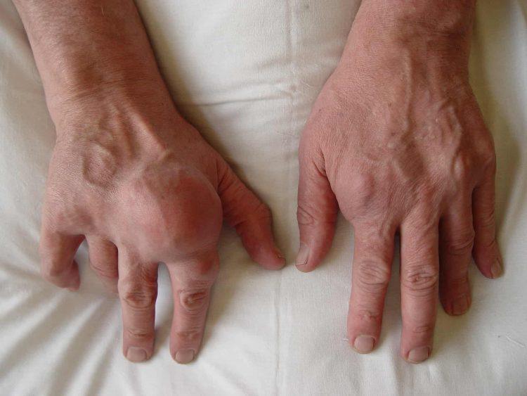 Подагрический артрит без своевременного лечения может привести к инвалидности