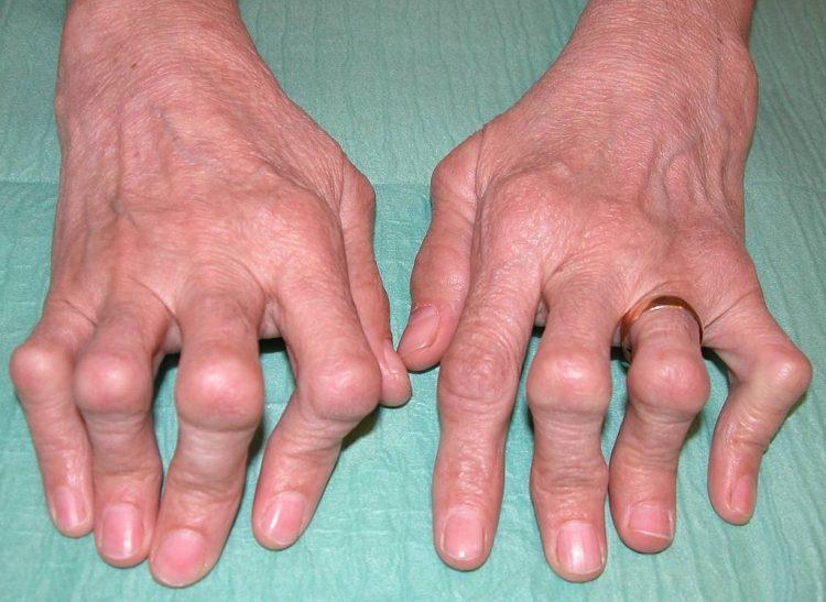 Полиартрит - заболевание,вылечить которое самостоятельно невозможно