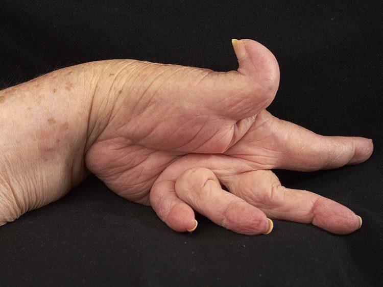 Деформация суставов при болезни