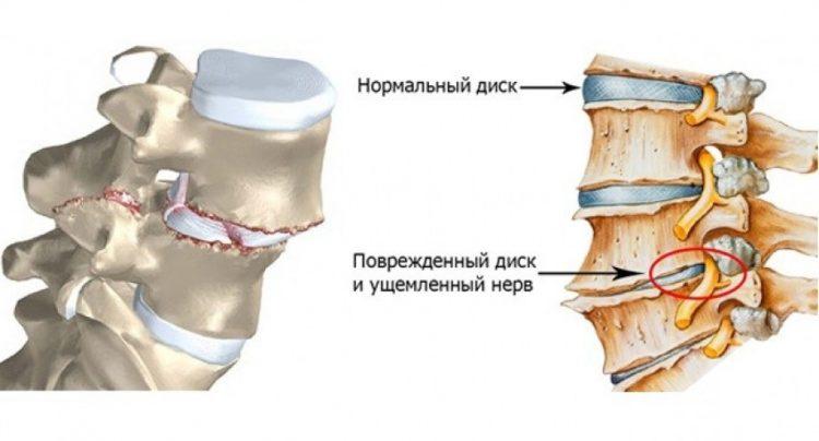 Как выглядит поврежденный диск при хондрозе
