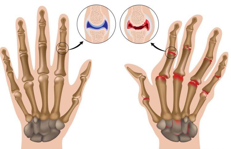 Как выглядит артрит суставов