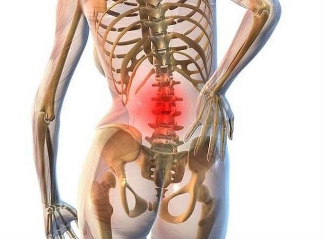 Уколы назначают в зависимости от степени тяжести остеохондроза