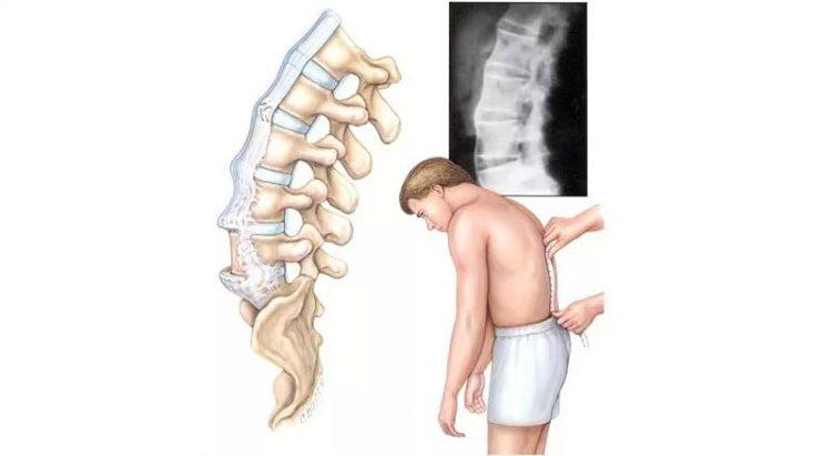 При поясничном спондилоартрозе у больного наблюдаются постоянные боли в спине