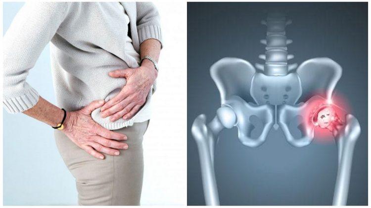 Остеоартроз тазобедренных суставов 1, 2 и 3 степени: лечение, стадии, боли при деформирующем коксартрозе