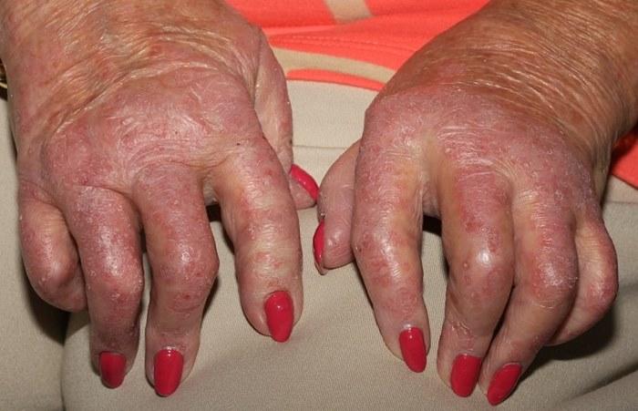 Псориатический артрит - осложнение заболевания псориаз