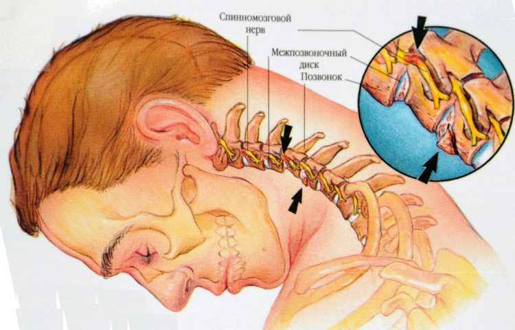 Поражение позвонков и дисков при шейном остеохондрозе