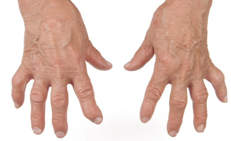 Как выглядят руки при ревматоидном артрите