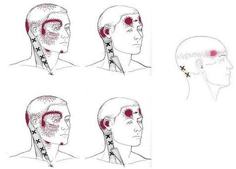 Варианты головной боли при шейном остеохондрозе