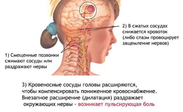 Проявление шейной мигрени