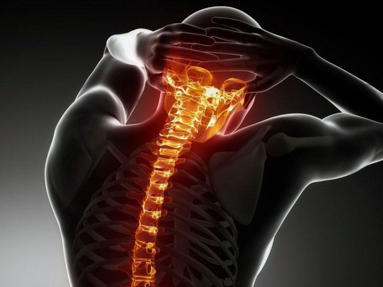 Шейный хондроз - заболевание, которое можно лечить в домашних условиях