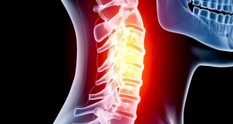 Боли в горле при остеохондрозе шейного отдела - симптом, не характерный для патологии
