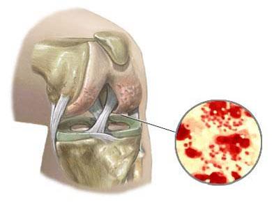 Септический бактериальный артрит сопровождается ильным болевым синдромом