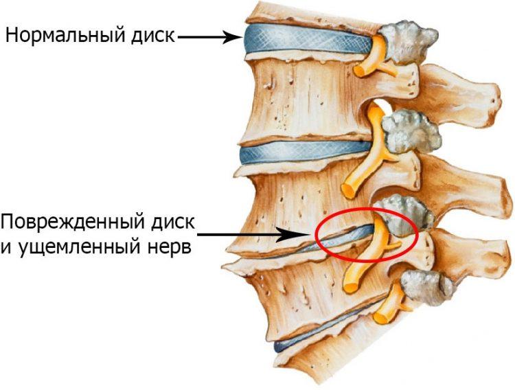Как выглядит остеохондроз позвоночника