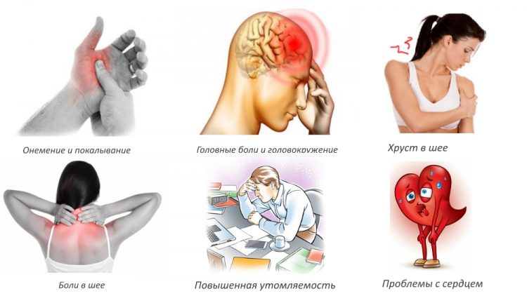 Какими симптомами проявляется шейный остеохондроз