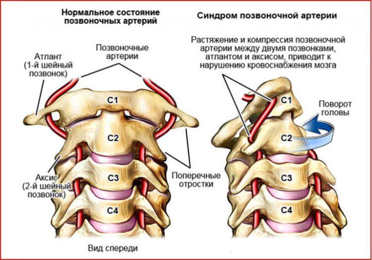Синдром позвоночной артерии и нормальное состояние
