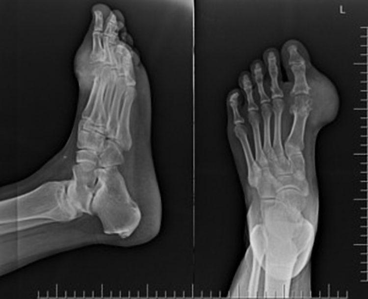 Снимок рентгена при артрите стопы