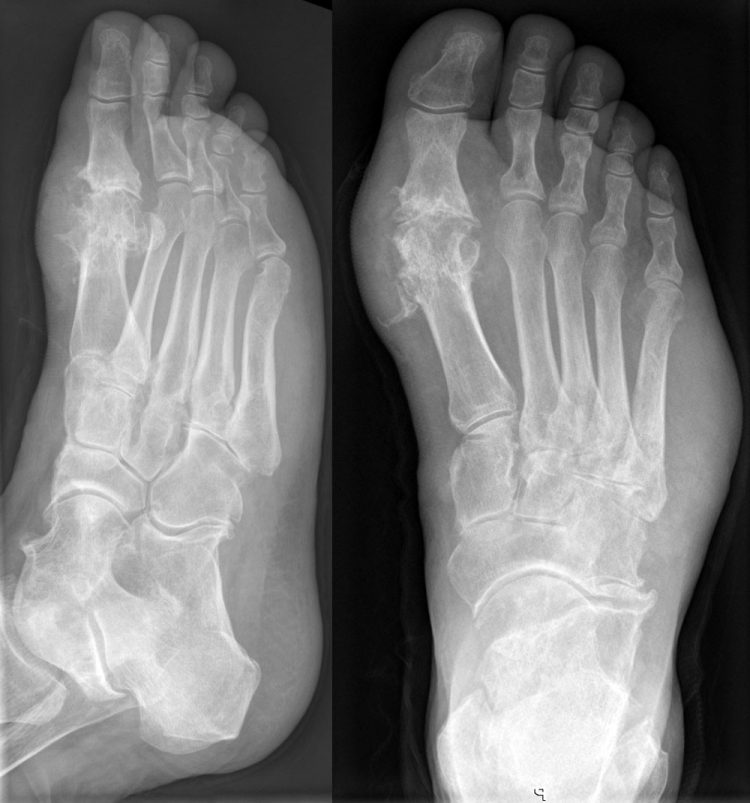 На начальных стадиях увидеть патологию на рентгеновском снимке практически невозможно
