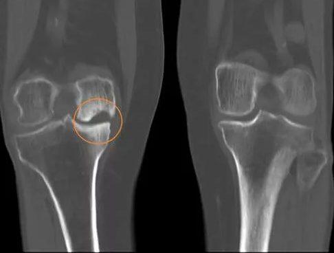 Как патология выглядит на рентгеновском снимке