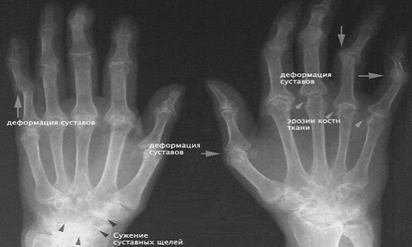 Как выглядит ревматоидный артрит на рентгеновском снимке