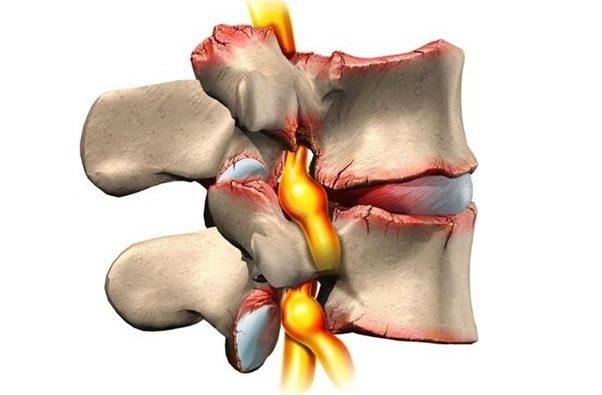 Спондилоартроз шейного отдела позвоночника доставляет массу неудобств больному