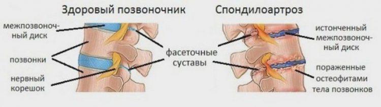 Как выглядит спондилоартроз шейного отдела и здоровый позвоночник