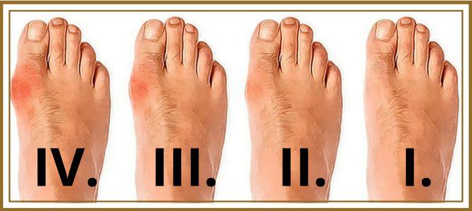 Специалисты выделяют 4 стадии развития артрита