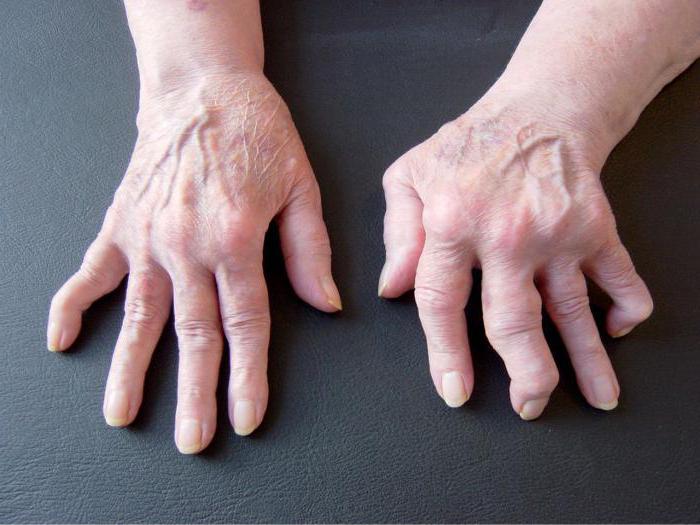 Медикаментозное лечение артрита пальцев рук