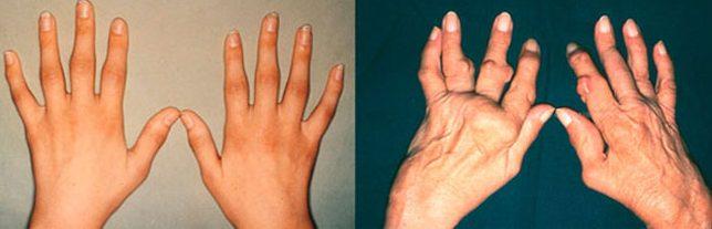 Заболевание развивается в 4 стадии