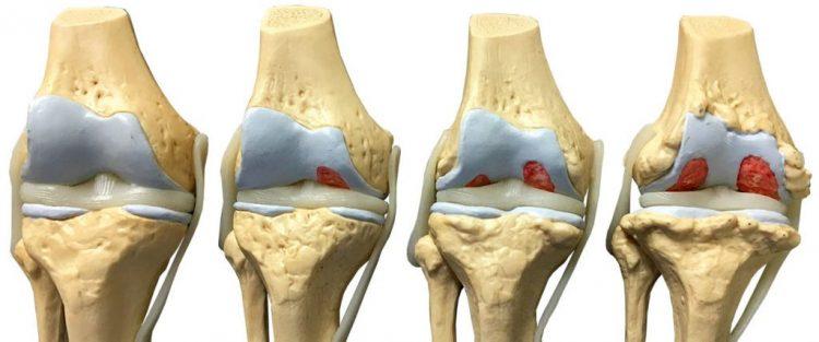 Как поражается сустав на каждой стадии заболевания