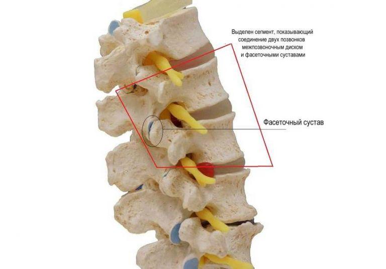 Внешний вид сустава при спондилоартрозе