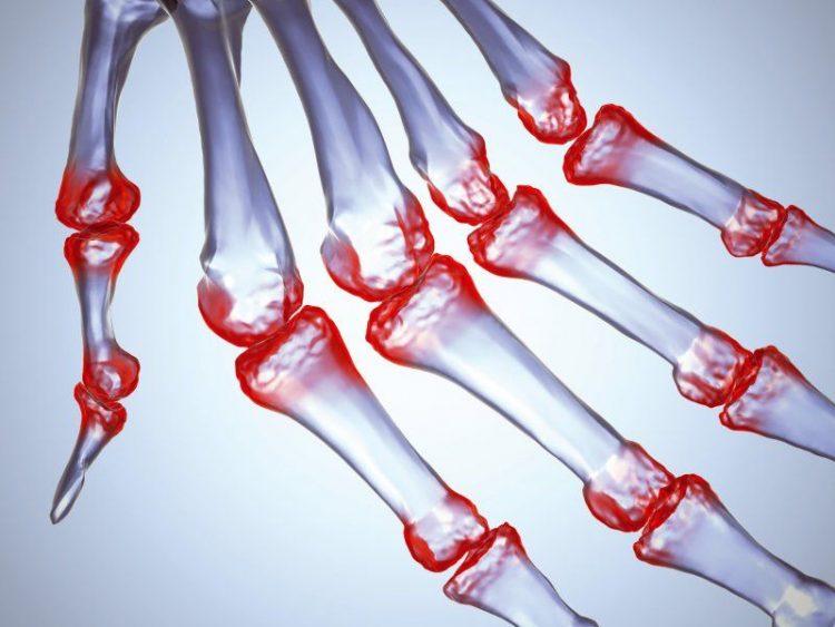 Множественное воспаление суставных тканей