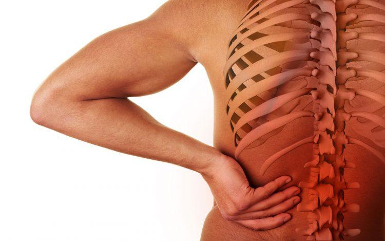При остеохондрозе может развиваться сутулость спины