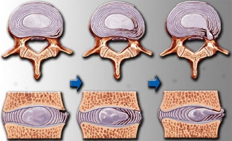 Изменения в позвоночнике при шейном остеохондрозе (3 стадии)