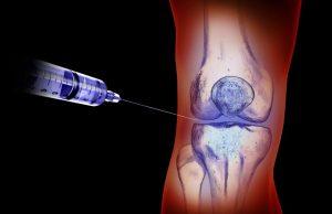 Внутрисуставные инъекции часто используют при поражениях коленного сустава
